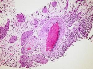 Scoperto come spegnere il cancro senza agire sulle cellule tumorali